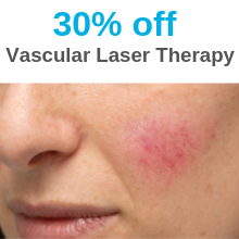 Vascular Laser Therapy Special - July & Aug 19