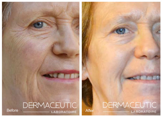 dermaceutic-cosmo-peel-before-after2