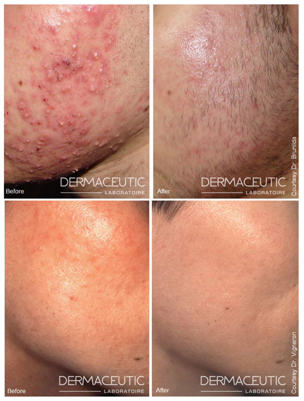 dermaceutic-mask-peel-before-after