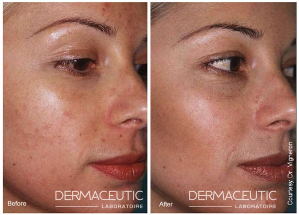 dermaceutic-milk-peel-before-after