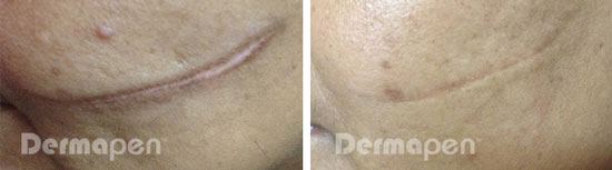 before after cut scar